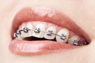 Garantía de Clínica - Dentistas de Confianza - Ortodoncia Brackets