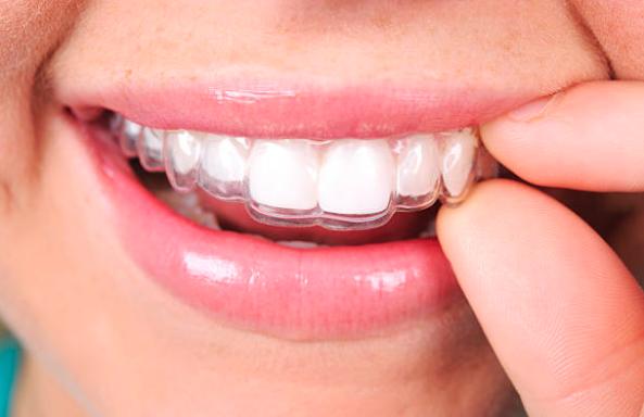 Ortodoncia low cost peligros