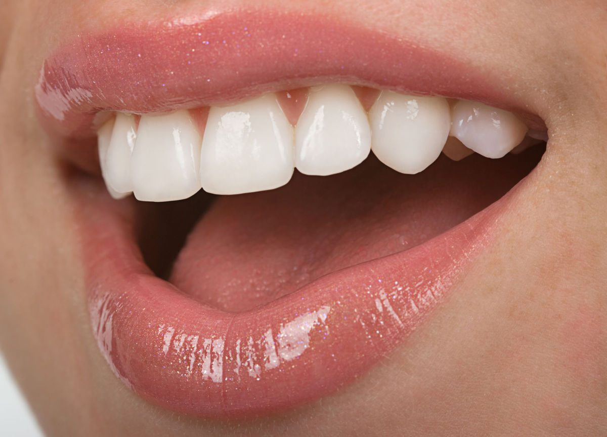 Club-Dental-Garantía-de-Clínica-Dentista-de-Confianza-Dientes-1200x863.jpg