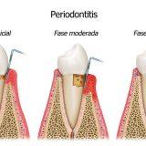 Club Dental Garantía de Clínica - Dentista de Confianza - Periodontitis