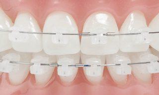 Garantía de Clínica - Dentistas de Confianza - Ortodoncia Brackets Zafiro