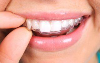 Garantía de Clínica - Dentistas de Confianza - Ortodoncia Invisalign