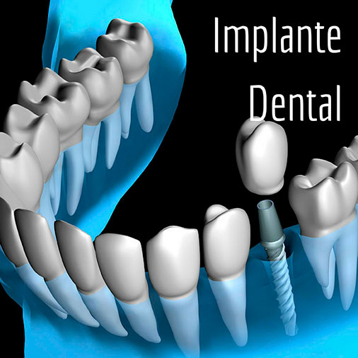 Implantes dentales en Quality Dental