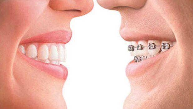 Implantes-ortodoncia