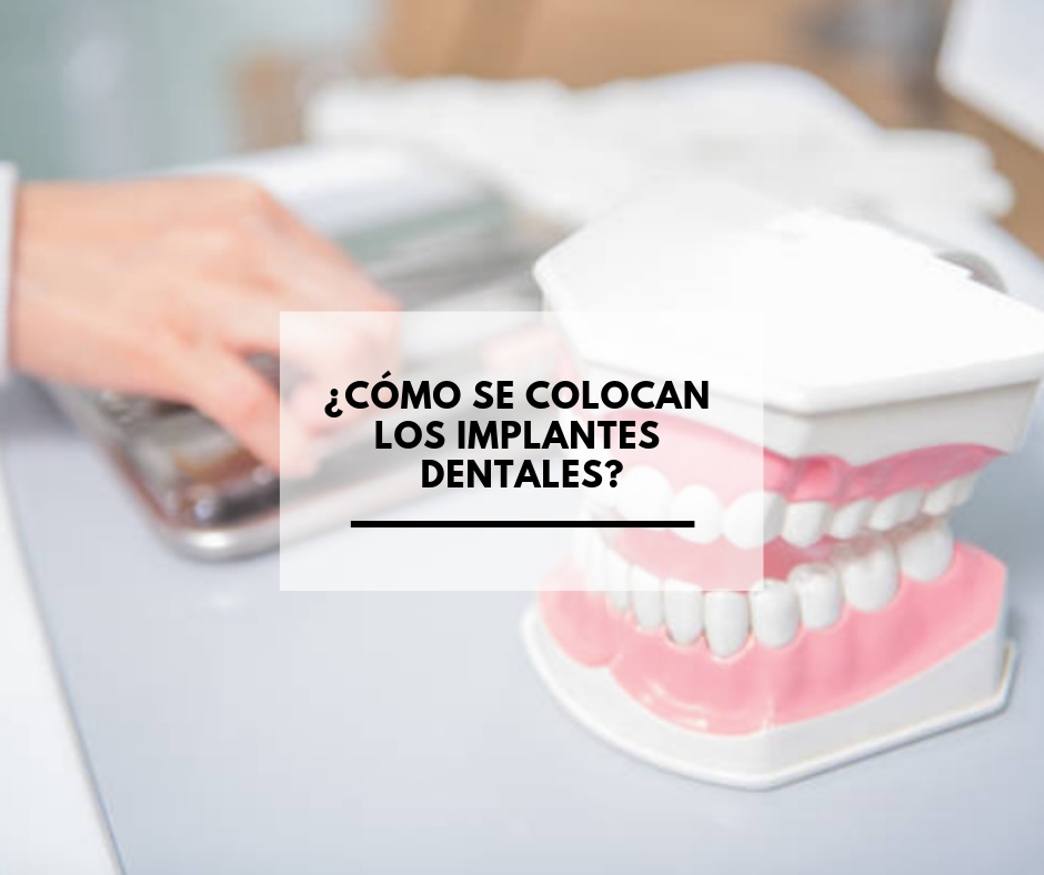 Cuáles-son-los-síntomas-de-la-enfermedad-periodontal_-7.jpg