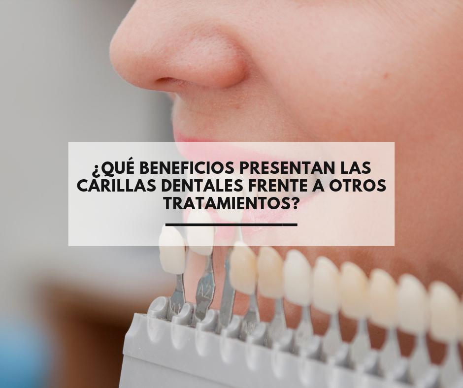 Qué-beneficios-presentan-las-carillas-dentales-.png