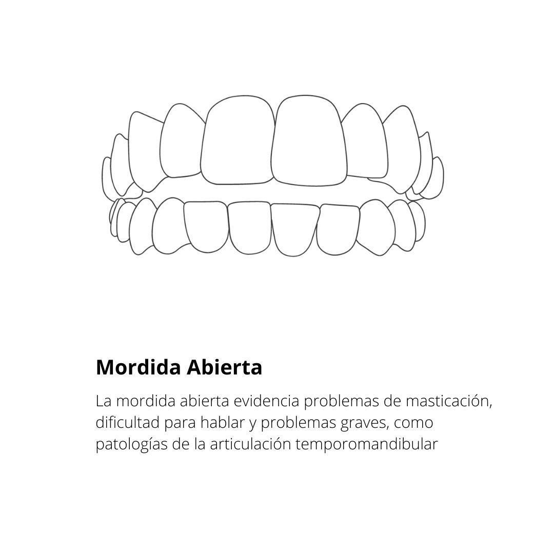 Tipo de mordida_dentista de confianza