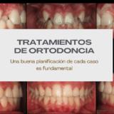 Caso de apiñamiento dental_dentista de confianza