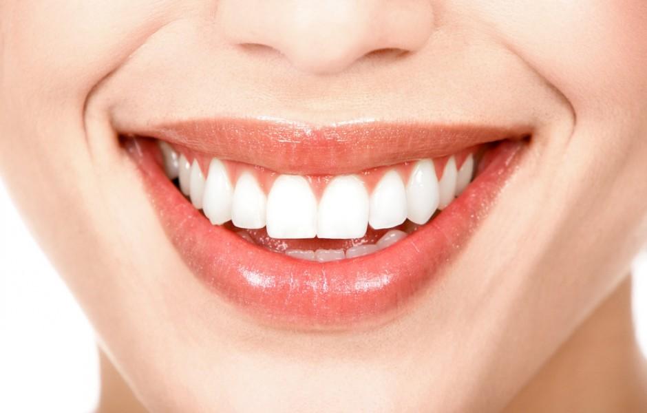 Club-Dental-Garantía-de-Clínica-Dentista-de-Confianza-Blanqueamiento-dental-y-Carillas.jpg