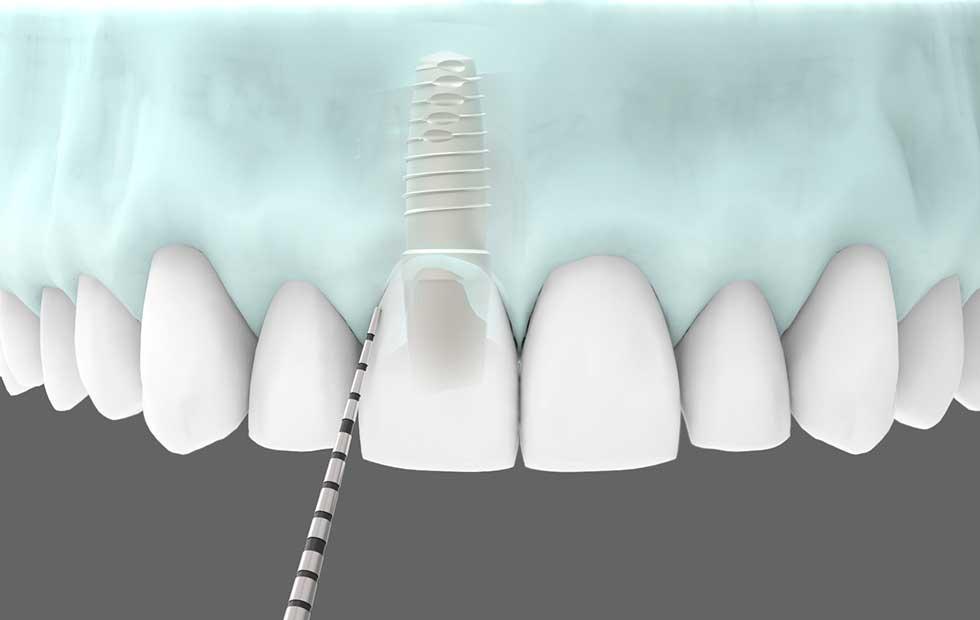 Club-Dental-Garantía-de-Clínica-Dentista-de-Confianza-Mantenimiento-Implantes-Dentales.jpg