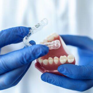 ¿Apiñamiento de los dientes? Cómo solucionarlo rápidamente.