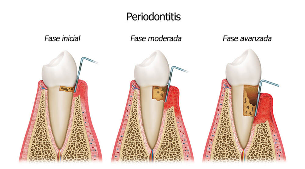 Garantía-de-Clínica-Dentista-de-Confianza-Periodontitis.jpg