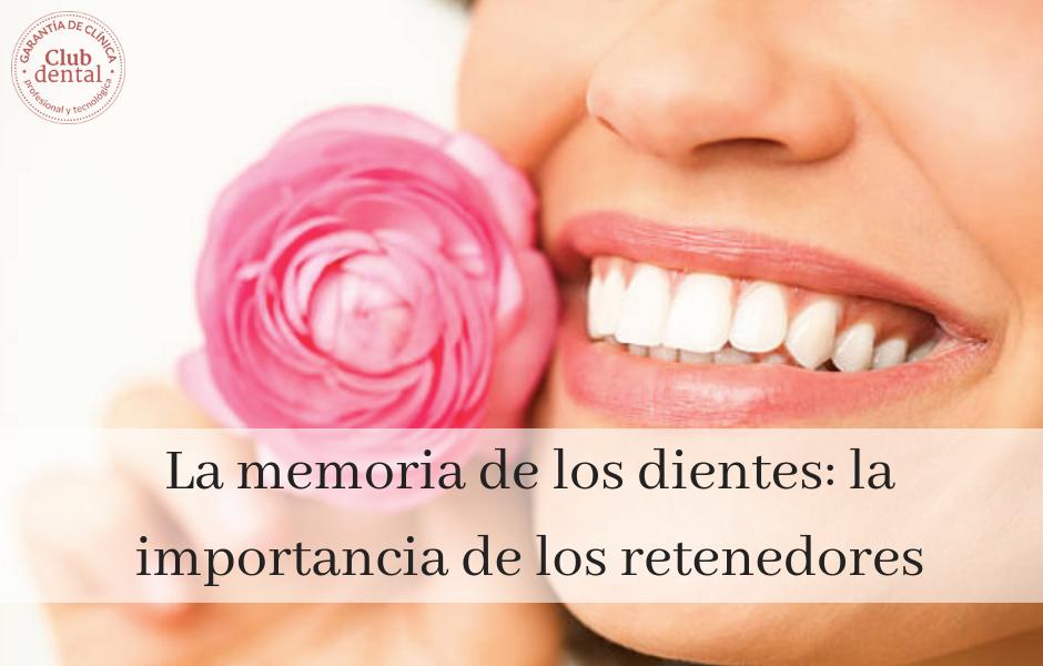 La-memoria-de-los-dientes_-la-importancia-de-los-retenedores.png