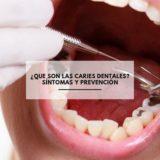 ¿Que son las caries dentales? Síntomas y prevención