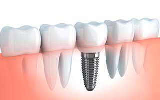 https://garantiadeclinica.com/wp-content/uploads/implantes-quality-dental-320x200.jpg