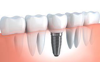 Club Dental Garantía de Clínica - Dentista de Confianza - Implantes Dentales