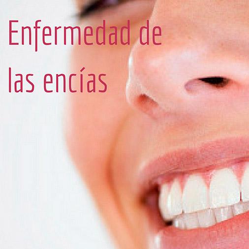 Tratamiento de la enfermedad de las encías en Quality Dental